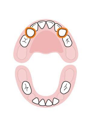 دندان های شیری کودک,دندان های پیشین فک بالا