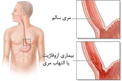 علایم سرطان مری, درمان سرطان مری