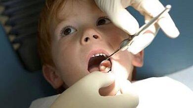 تصویر مهمترین عامل پوسیدگی دندان در کودکان