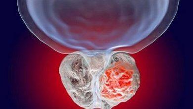 Photo of اقداماتی برای کاهش خطر سرطان پروستات