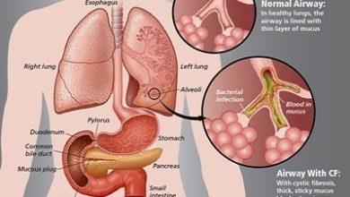 Photo of علل، علائم و درمان فیبروز ریوی