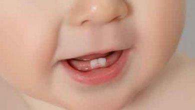 تصویر ترتیب رشد دندان های کودک