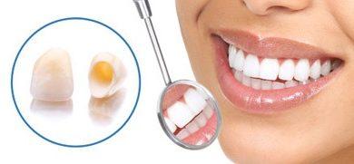 Photo of همه چیز درباره روکش دندان