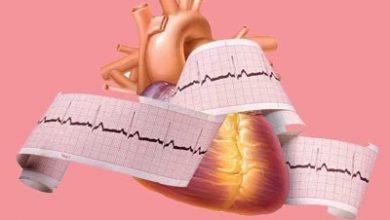 Photo of علائم ,علل و درمان التهاب عضله قلب یا میوکاردیت