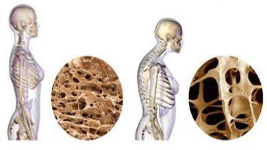 تصویر تمام نکات رژیمی برای جلوگیری از ابتلا به پوکی استخوان