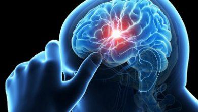 Photo of با مصرف روزانه 9 ماده غذایی سالم، سکته مغزی را از خود دور کنید