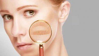 تصویر تشخیص بیماری از روی صورت