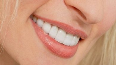 Photo of همه چیز درباره لمینت دندان