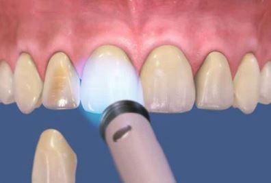 لمینت دندان چیست, معایب لمینت دندان,همه چیز درباره لمینت دندان,لمینت سرامیکی