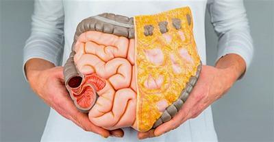 درمان یبوست با طب سنتی,درمان یبوست های مزمن