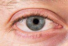 Photo of دلایل ، پیشگیری و بهترین درمان خشکی چشم