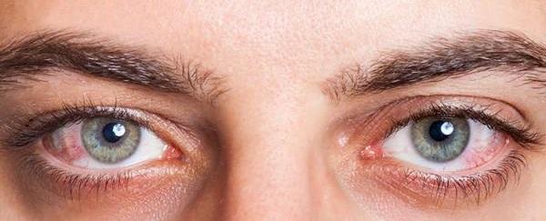 علت خشکی چشم,خشکی چشم,خشکی چشم و درمان آن , سندرم خشکی چشم