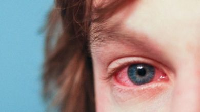 Photo of درمان حساسیت ها و آلرژی چشمی