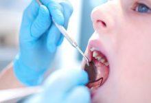 Photo of عفونتی خطرناک که در دندان هایتان نهفته است