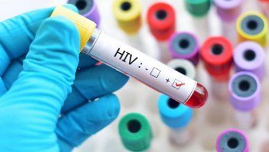 Photo of دانستنیهایی درباره اچآیوی
