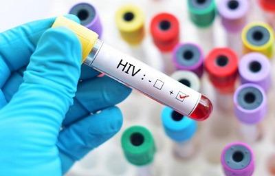 تفاوت ایدز و اچ آی وی, علائم اچ آی وی مثبت, علایم بیماری اچ آی وی,دانستنیهایی درباره اچآیوی