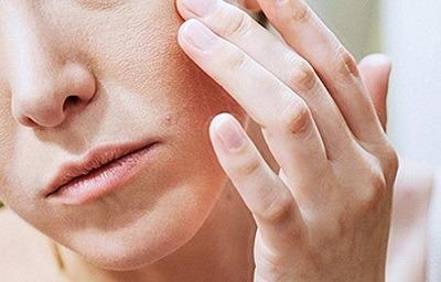 اگزما,درمان اگزما,اگزما چیست