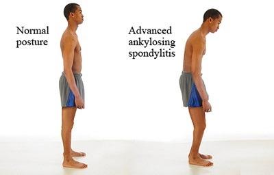 علائم اسپوندیلیت انکیلوزان, علل اسپوندیلیت انکیلوزان,علت اسپوندیلیت انکیلوزان,عوارض احتمالی اسپوندیلیت انکیلوزان