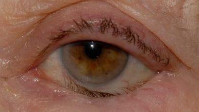 Photo of انتروپیون یا برگشتگی پلک به داخل