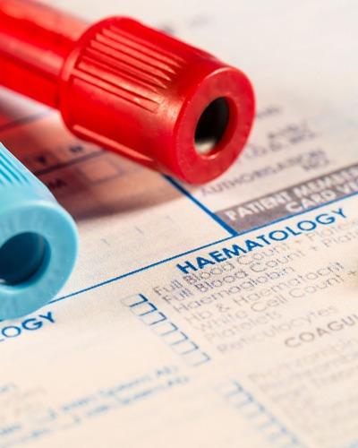 نحوه خواندن جواب آزمایش خون, تفسیر آزمایش خون,خواندن آزمایش خون, نحوه خواندن آزمایش خون
