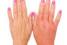 تصویر دلایل ورم انگشتان دست