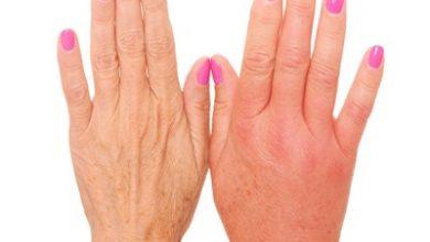 Photo of دلایل ورم انگشتان دست