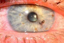 Photo of جسم خارجی قرنیه و ملتحمه چشم