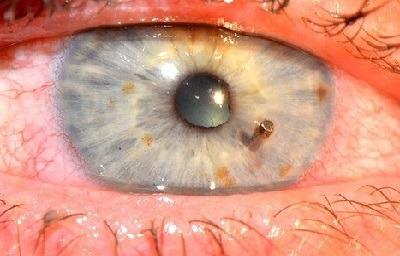 جسم خارجی در چشم ,  درآوردن آشغال از چشم