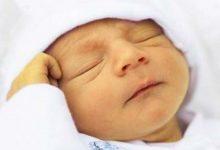 تصویر درمانهای خانگی زردی نوزاد + عوارض زردی