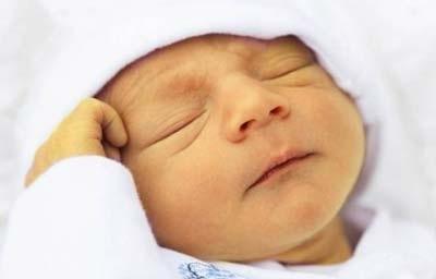 درمان خانگی زردی نوزاد,علت زردی نوزاد,علل زردی نوزاد
