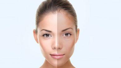 تصویر قوی ترین ماسک های روشن کننده پوست