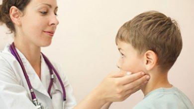 Photo of علل، علائم و درمان تورم غدد لنفاوی!