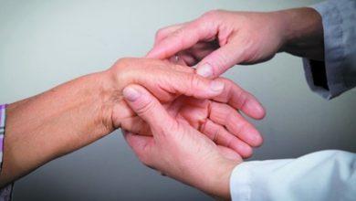 تصویر علل ، علائم و درمان روماتیسم مفصلی