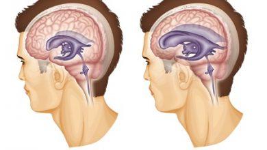 تصویر آب آوردن مغز یا هیدروسفالی(علت، علائم و درمان)