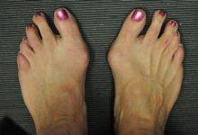 Photo of انحراف شست پا یا بونیون چیست؟