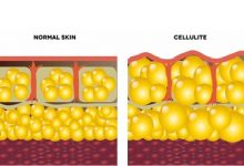 Photo of سلولیت چیست؟ راههای درمان سلولیت