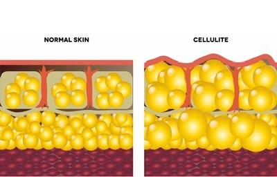 درمان سلولیت پا, ورزش برای رفع سلولیت,بیماری سلولیت چیست, راهکارهای از بین سلولیت بطریق خانگی,عکس سلولیت
