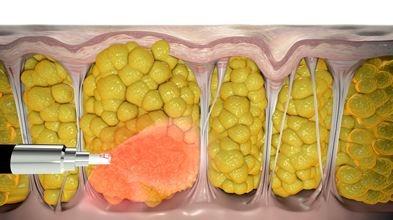 درمان سلولیت پا, ورزش برای رفع سلولیت,بیماری سلولیت چیست, راهکارهای از بین سلولیت بطریق خانگی