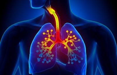 علایم و درمان برونشیت, برونشیت ریه چیست,انواع برونشیت,راههای درمان برونشیت