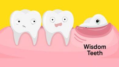 Photo of همه چیز درباره دندان عقل (جراحی و مراقبتهای بعد از جراحی)