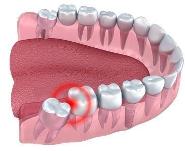 عصب کشی دندان عقل, مراحل جراحی دندان عقل,زمان در اومدن دندان عقل,عفونت دندان عقل