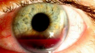 Photo of هایفما چشم چیست؟ + علائم ، علل و راه درمان