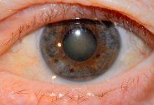 تصویر آب مروارید چشم ، روش درمان و پیشگیری