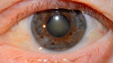 Photo of آب مروارید چشم ، روش درمان و پیشگیری