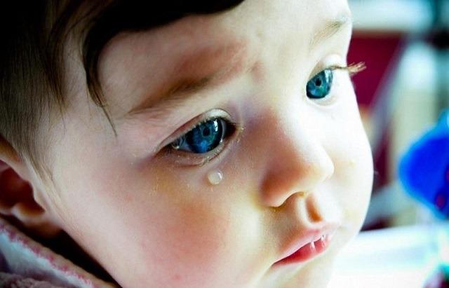 انسداد مجرای اشکی,بسته شدن مجرای اشکی,درمان انسداد مجرای اشکی