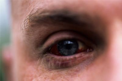 عوارض بیماری دیابت, شبکیه چشم,رتینوپاتی دیابتی,تورم پرده شبکیه