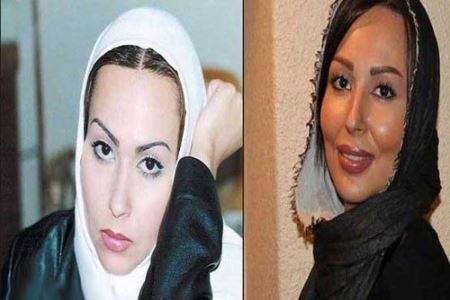 پرستو صالحی قبل و بعد از عمل زیبایی,بازیگران ایرانی قبل و بعدی از عمل زیبایی