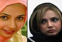 Photo of عکس بازیگران زن ایرانی قبل و بعد از عمل زیبایی