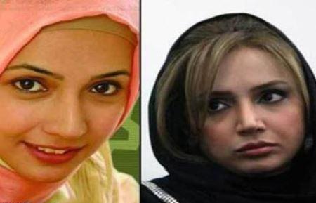 شبنم قلیخانی قبل و بعد از عمل زیبایی,بازیگران ایرانی قبل و بعدی از عمل زیبایی