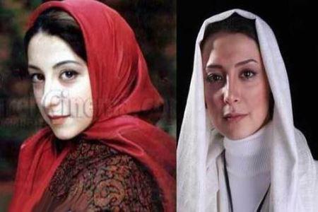 سحر جعفری جوزانی قبل و بعد از عمل زیبایی,بازیگران ایرانی قبل و بعدی از عمل زیبایی